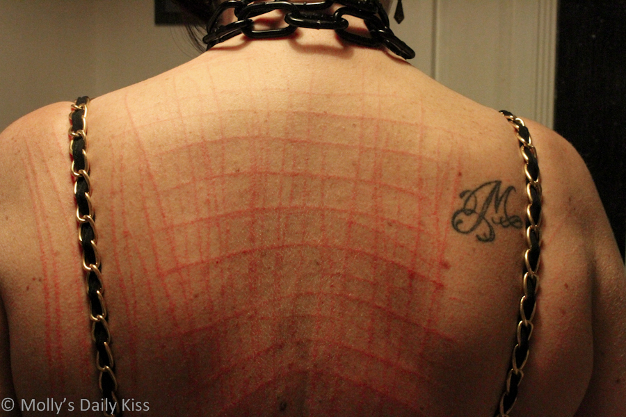 scratch marks on womans back