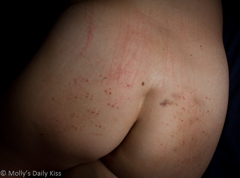 bruises and welts on womans bum for post about marks